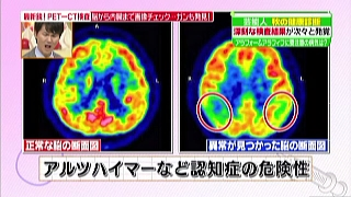 アルツハイマーなど認知症の危険性