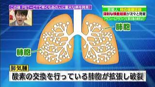 酸素の交換を行っている肺胞が拡張し破裂
