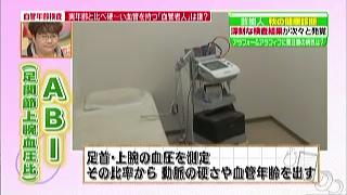 ABI(足関節上腕血圧比)