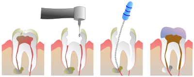 400px-Root_Canal_Illustration_Molar_svg.png