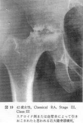 関節リウマチ 股関節変形画像