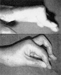 RA関節画像