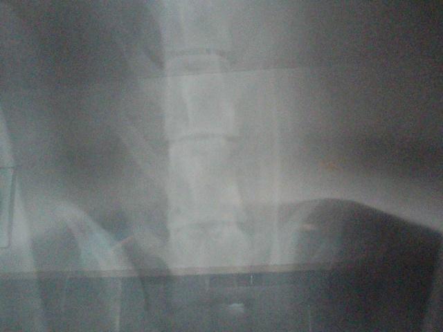 若干透けて見える背骨が病原です。