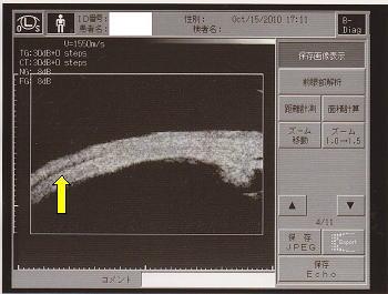 毛様体脈絡膜剥離