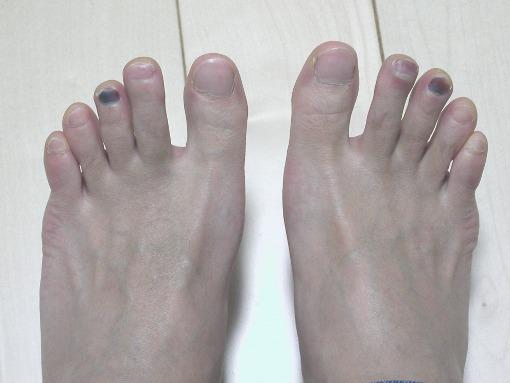 爪がというか痛い