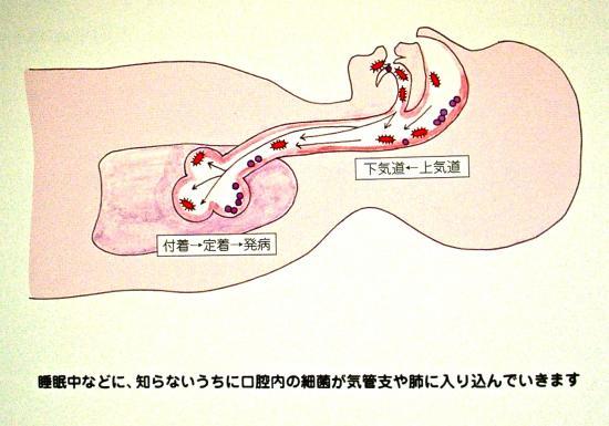 細菌と呼吸器_convert_20110413134101