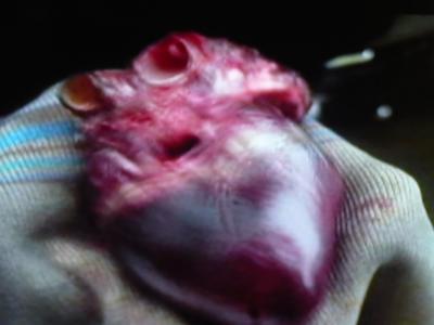 ゾンゲリア:心臓