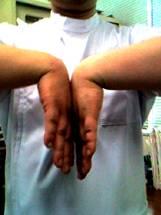 手根管症候群の簡単なチェック:この形をとり、痛みや違和感等の有無を確認