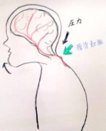 猫背になると、頭部の重さで椎骨動脈を圧迫する
