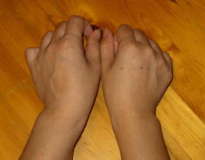 両手:関節普通時
