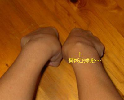 両手:関節曲げ時