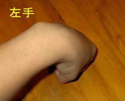 左手:関節曲げ時