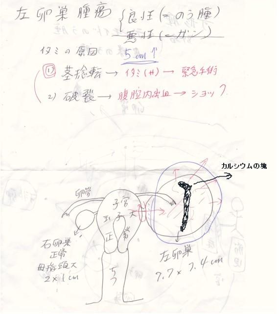 卵巣のう腫 お医者さんの説明(カルシウム版)
