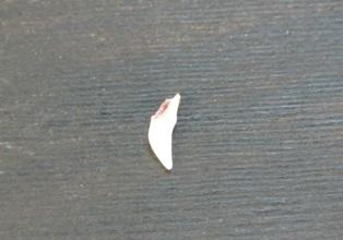 ごまの乳歯