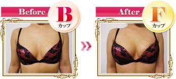 b_after01.jpg