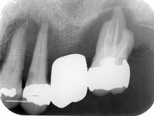 歯周病の患者さん_1