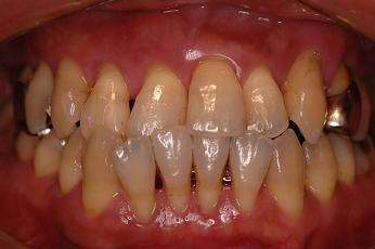 歯周病患者さんの初診口腔内