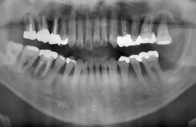 歯周病の患者さんパノラマ