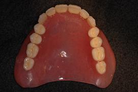 下顎総義歯_1