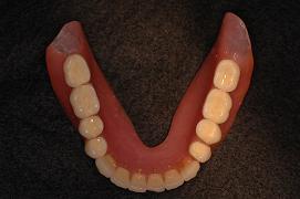 上顎総義歯_1