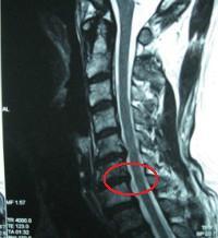 頸椎 MRI