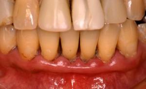 4年後の歯ぐき