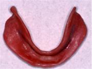 下総義歯(リベース後)