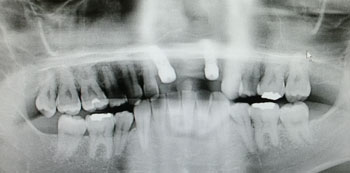 implant02271301.jpg