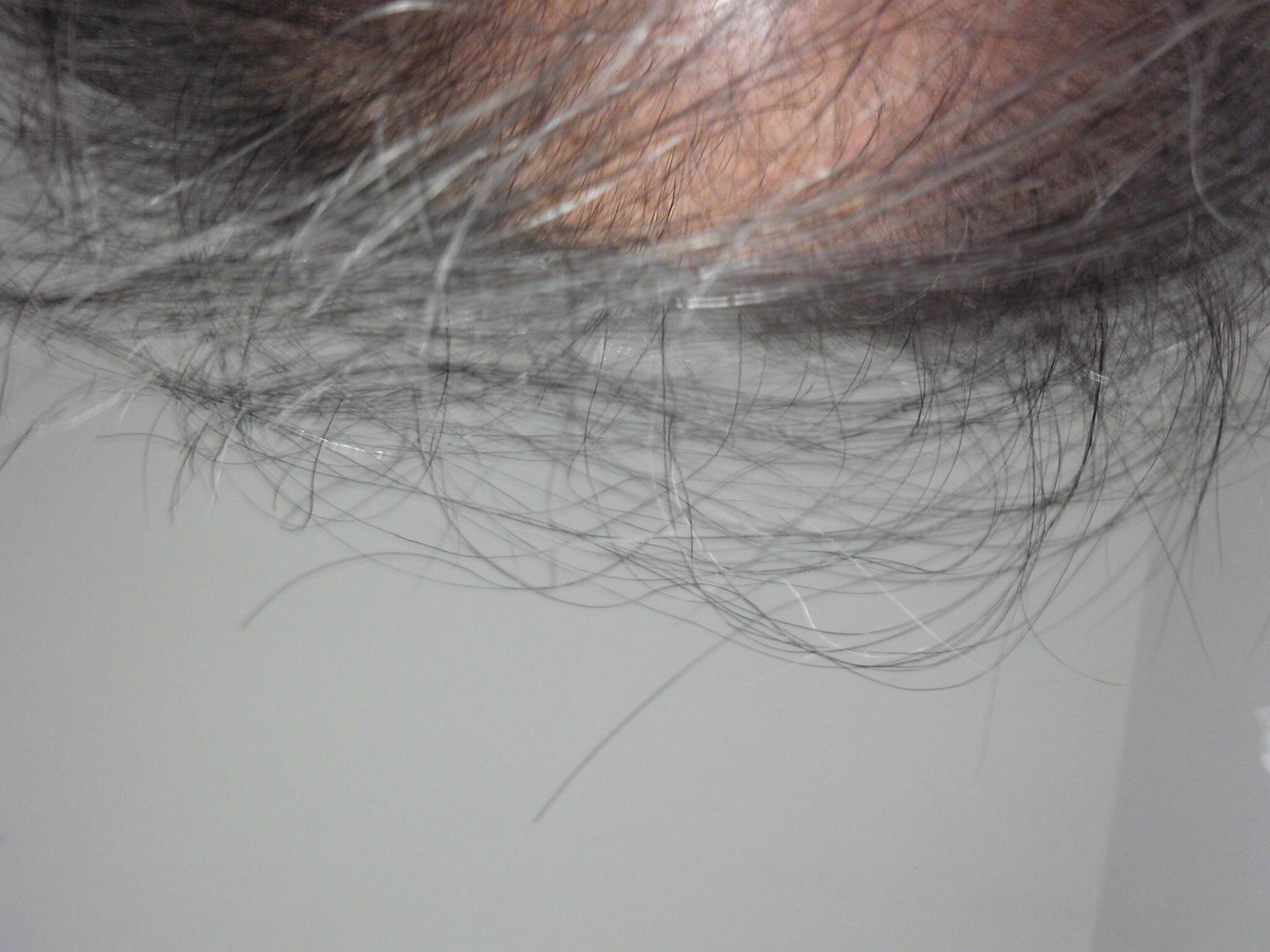 20130210_頭髪5ヶ月3