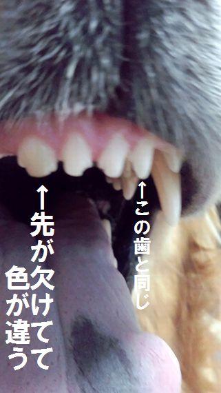ちょうだいねの日のだんぷん虫歯画像
