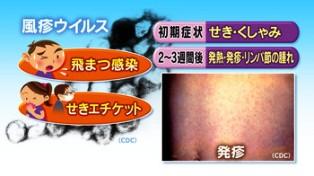 風疹ウイルス初期症状など画像