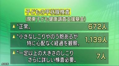 神奈川、埼玉、千葉、栃木、茨城の子供、6割に甲状腺のう胞