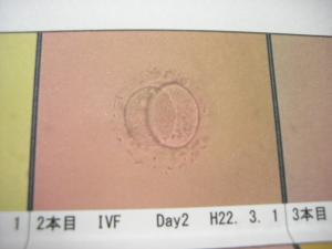 凍結胚#10084;#10084;