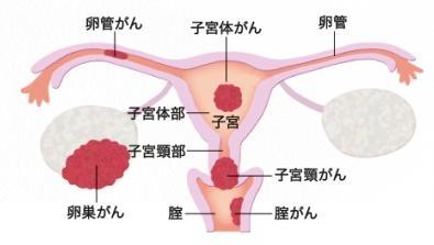 子宮頸癌01