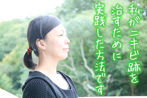 ニキビ跡治す方法【体験談】